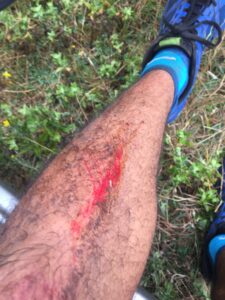 Rich scraped his leg after a nasty fall on the descent